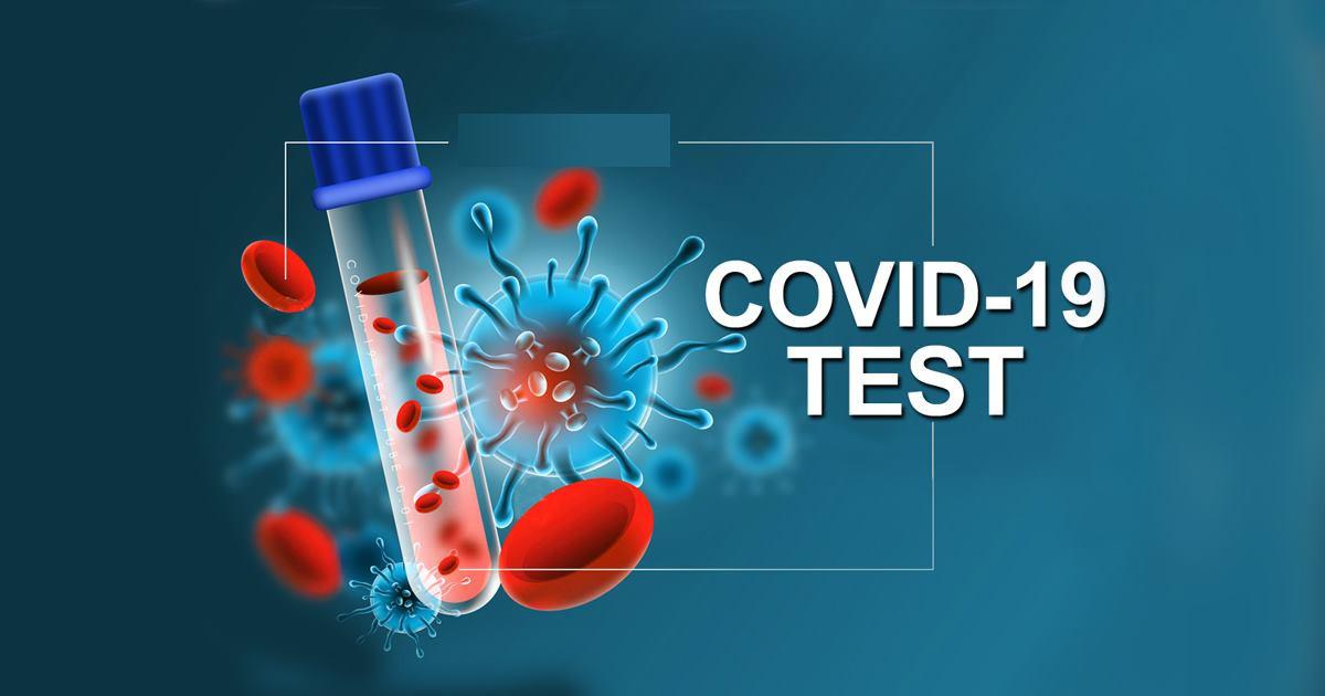 आरडिटीमा पोजिटिभ देखिएका दुई यूवामा भेटिएन कोरोनाभाइरस