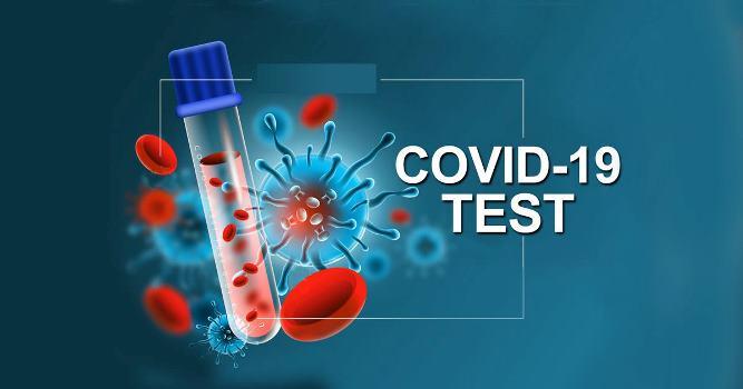 थप १७ जनामा कोरोना संक्रमण पुष्टि, संक्रमितकाे संख्या ९९ पुग्यो
